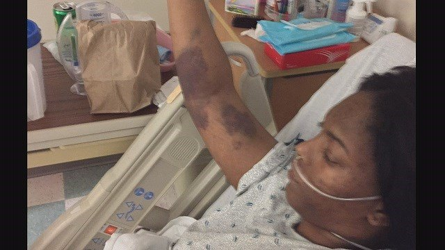 Deonyia Johnson paralyzed after being shot by a Venice, Illinois police officer in May; Johnson says she wants answers (Credit: Deonyia Johnson).