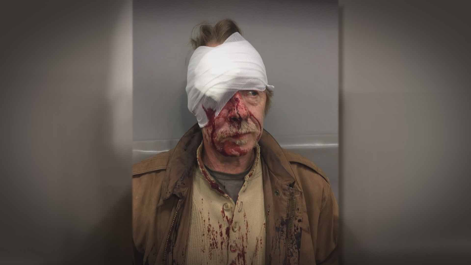 Musician Tom Hall was kicked and and punched by several suspects in Soulard Thursday in a 'knockout game' style attack. Credit: KMOV