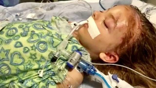 A driver suspected of driving drunk and causing a crash that caused a South Bay boy to have head injuries was deported to Mexico 15 times in the past, according to U.S. Immigration and Customs Enforcement.