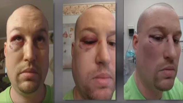 Derek Schnoeker said a patient a Chester Mental Health punched him (Credit: Derek Schnoeker)