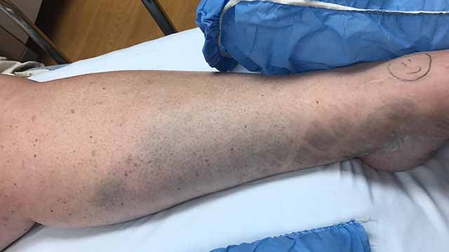 Karla Wessels said a suspect who burglarized her home ran over her leg with his truck when he tried to get away. Credit: KMOV