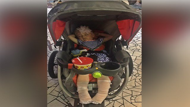 A toddler severly burned at the newly renovated Kiener Plaza has now been released from the hospital. (Credit: Family photo of Lila)