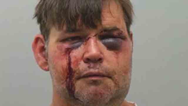 Shawn Watters is charged with assault, leaving the scene of an accident and resisting arrest (KMOV)