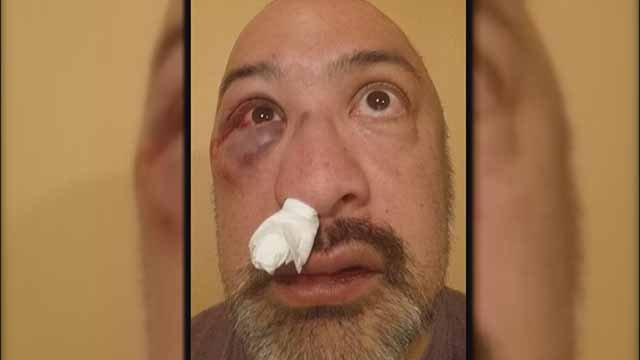 Mark Zschiegner was beaten by a several suspects in front of his home in Fox Park. The incident was caught on camera. Credit: KMOV
