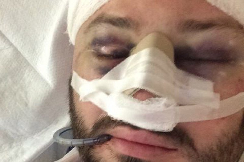 Jimmy Muckle was seriously injured during an attempted robbery walking to work in August.