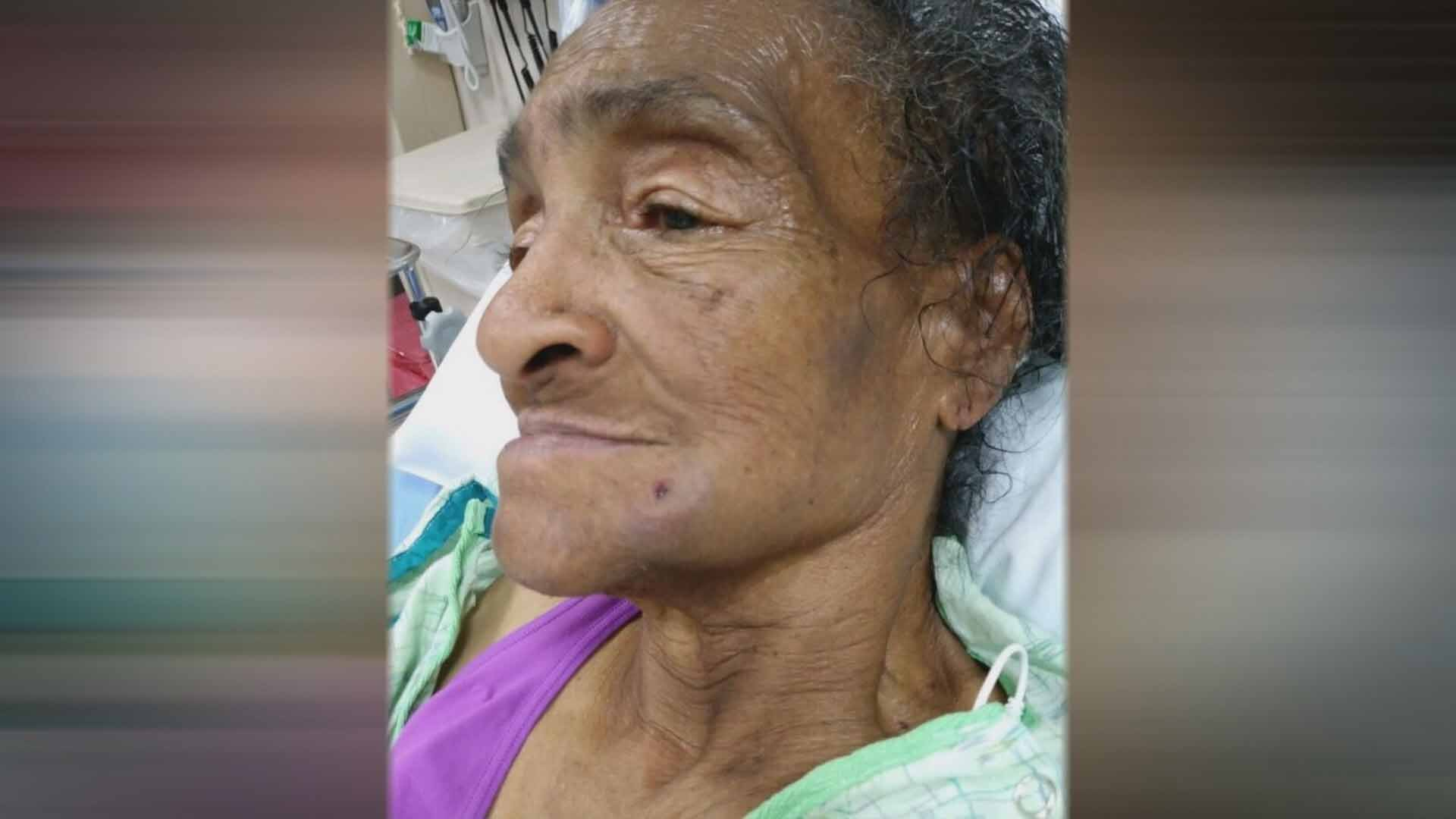 Norma Robinson, 81 was shot in the face with a BB gun on the parking lot of a South City shopping center. Credit: KMOV