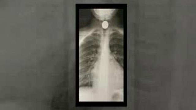 X-Ray of quarter in Kaylee Burke's throat. (Credit: Family)