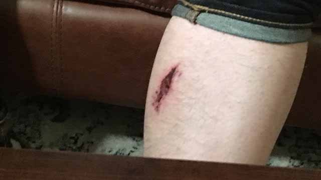 David Leininger was picking up his car at the Sky Park parking lot after arriving at St. Louis Lambert International Airport on New Year's Eve after a trip to Phoenix when he was grazed by a bullet. Credit: KMOV