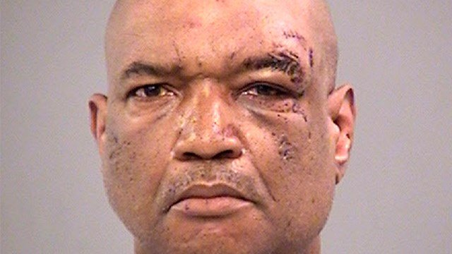 Gary Madison faces three preliminary charges of battery by means of a deadly weapon. (Credit: Marion County Jail via AP)