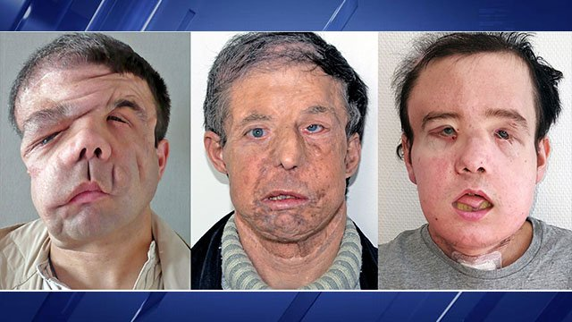 The Georges Pompidou hospital in Paris first transplanted a new face onto Jerome Hamon in 2010. But after getting ill in 2015, Hamon was given drugs that interfered with anti-rejection medicines he was taking for his face transplant. (Credit: AP)