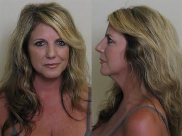 Shelly Lewis, 45, from O'Fallon, Missouri has been charged with public indecency after she allegedly exposed her breasts on an Alton, Illinois golf course. By Eric Lorenz