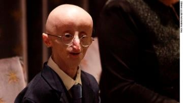 Sam Berns became well-known for being public about his life with progeria, which causes accelerated aging. By Brendan Marks