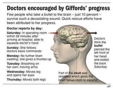 Graphic shows Giffords day-to-day recovery from her injury By J. Bell