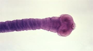 The most common form of brain tapeworm is the pork tapeworm -- Taenia solium. Taeniasis, the intestinal infection transmitted by the adult worm, is a mild condition, caused by eating undercooked pork. By Stephanie Baumer