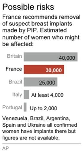 Graphic looks at the number of women by country affected by risky breast implants By J. O'Connell