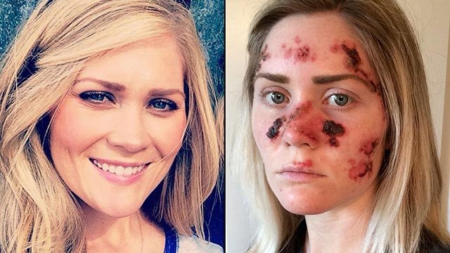(Credit: Tawny Willoughby) Tawny Willoughby used a tanning bed 4 to 5 times a week in high school. Now, at 27, she's dealing with painful skin-cancer treatments. This selfie of Willoughby (right), posted last month to Facebook, has been shared almost 50,0