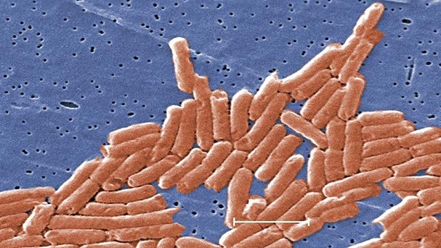 (Credit: CDC) A microscopic view of salmonella provided by the CDC.