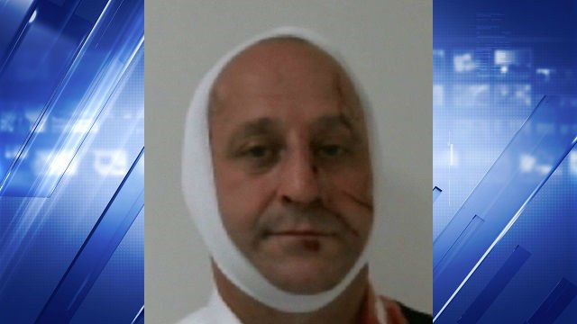 Madison County Assistant State's Attorney Calvin Fuller, 49, is accused of driving under the influence.