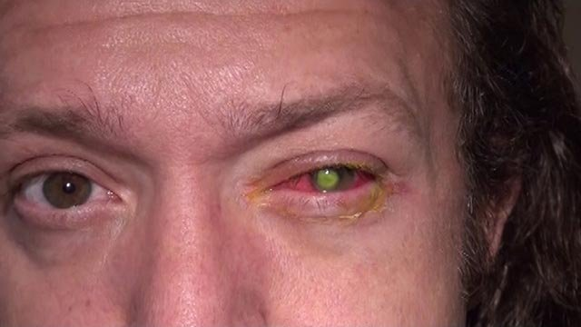 Chad Groeschen developed a dangerous bacterial infection in his left eye after sleeping in contact lenses. (Credit: Cincinnati Eye Institute)