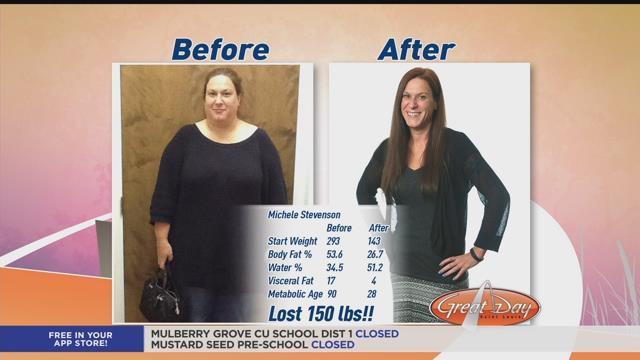 Remove male breast fat photo 4